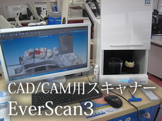 CAD/CAM用スキャナー EverScan3
